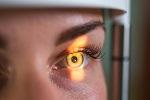 DM2 et cataracte sous-capsulaire postérieure à début précoce