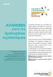 Avancées dans les dystrophies myotoniques