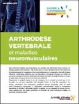 Arthrodèse vertébrale et maladies neuromusculaires